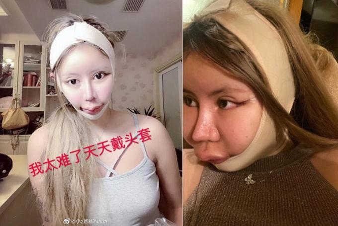 Khuôn mặt của cô gái trẻ ngày một biến dạng.