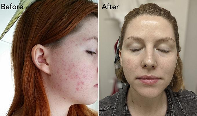 Làn da của Beth thay đổi tích cực sau thời gian áp dụng dưỡng da kiểu Hàn kết hợp lối sống lành mạnh.