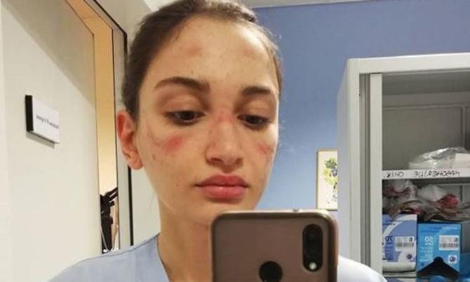 Nữ y tá Alessia Bonari đăng bức ảnh mặt hằn vết bầm do đeo thiết bị bảo hộ quá lâu. Ảnh: Instagram.