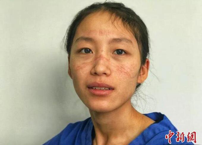 Khuôn mặt đầy vết hằn do đeo khẩu trang liên tục của y tá Chen Ying. Ảnh: Chinanews.