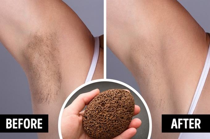 7 cách xử lý 'vi ô lông', vết thâm trên cơ thể