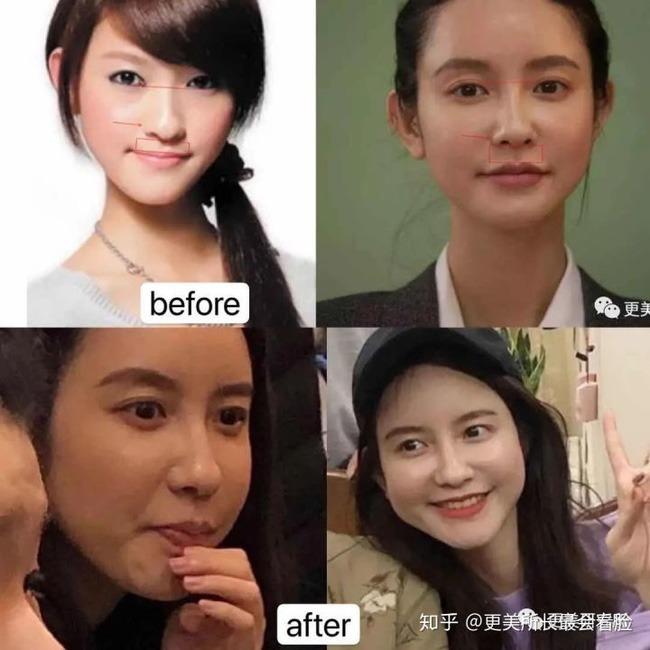Hình ảnh được cho là Đại Dịch trước và sau khi thẩm mỹ.
