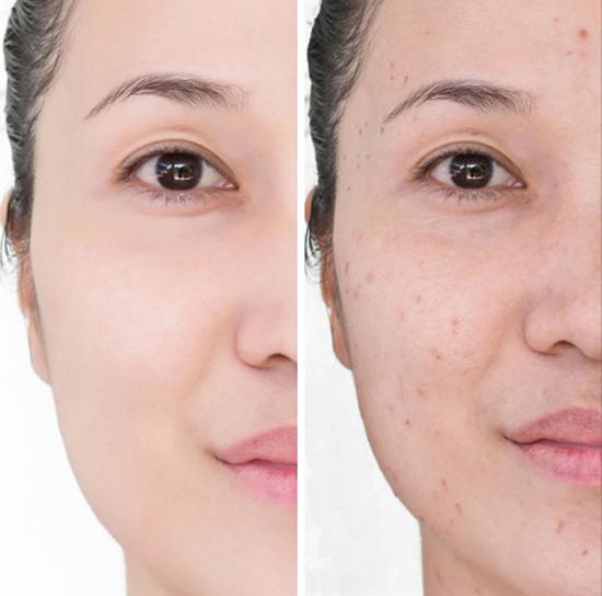Sử dụng khăn ướt cũng dễ gây kích ứng da, nhất là mẩn đỏ, biến đổi sắc tố da . Năm 2015 từng có một người phụ nữ bị phồng rộp tay và mặt sau khi dùng khăn ướt. Nếu bắt buộc phải sử dụng sản phẩm này, bạn nên đọc kĩ bảng thành phần.
