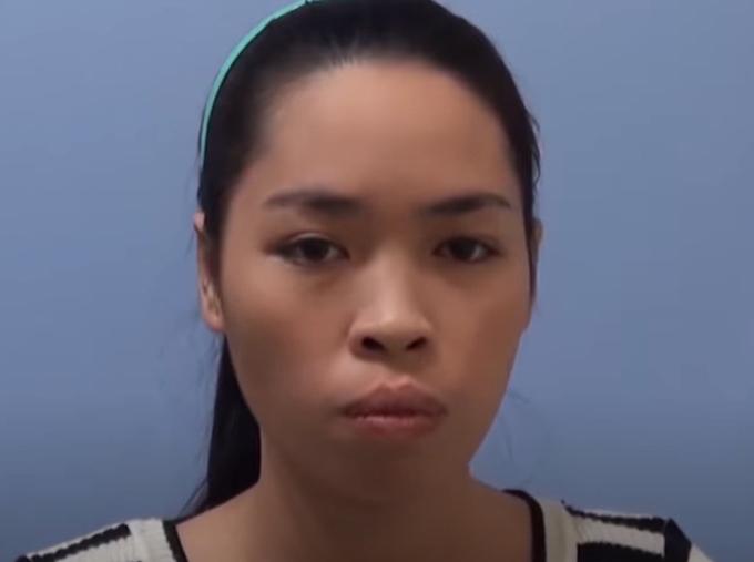 Phần hàm hô khiến gương mặt Vũ Thanh Quỳnh kém hài hòa.