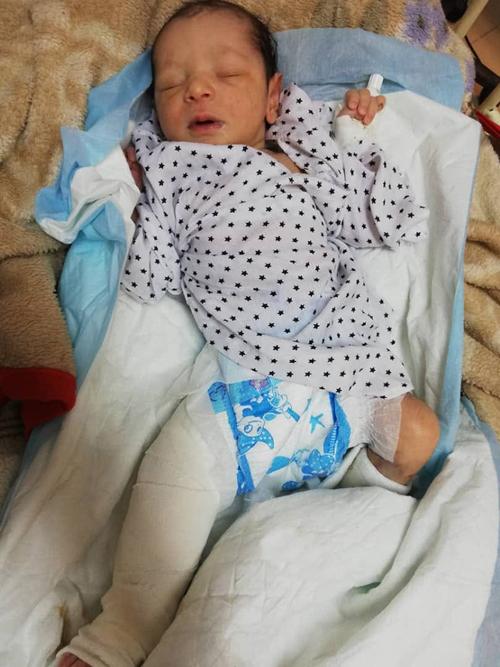 Amina hiện phục hồi tại bệnh viện NhiIndira Gandhi ở thủ đô Kabul, Afghanistan. Ảnh: Facebook.