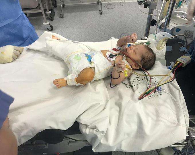 Bé Amina được phẫu thuật một ngày sau khi chào đời. Ảnh: Facebook.