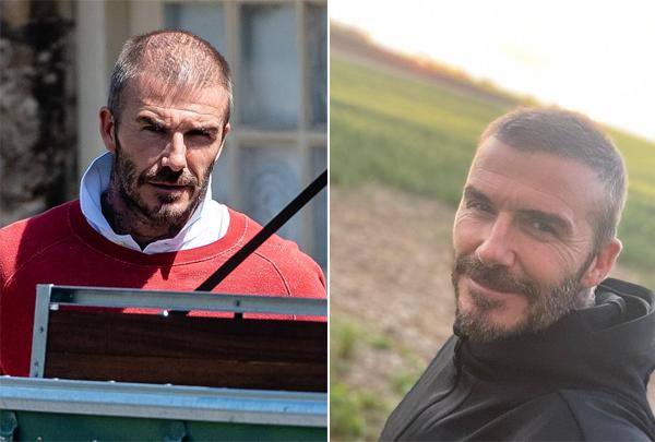 Becks với mái đầu lơ thơ tóc hôm 9/5 (trái) và hình ảnh tóc đầy đầu một tuần sau đó. Ảnh: Mirror.