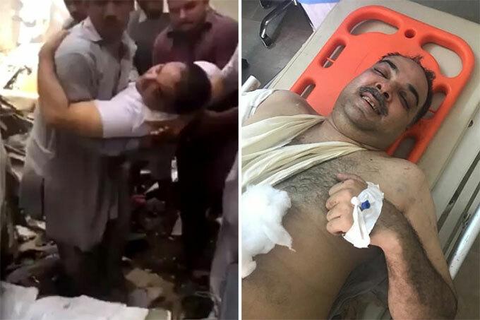 Ông Zafar Masood, hành khách sống sót, khi được kéo ra khỏi máy bay ở Pakistan hôm 2/5. Ảnh: