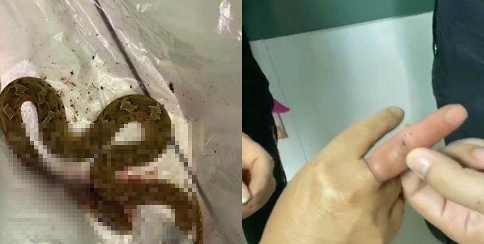 Con rắn bị bà Ding đánh chết rồi đưa đến bệnh viện. Ảnh: Shanghaiist.