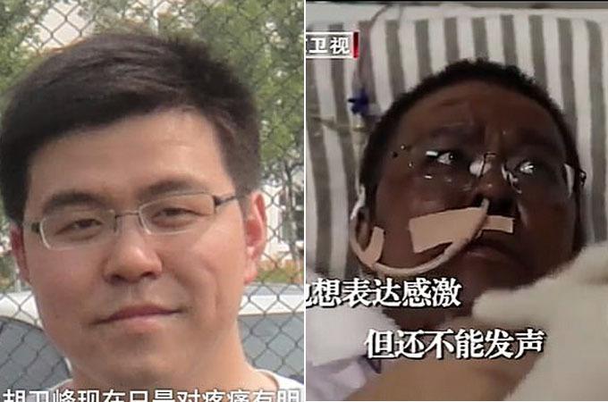 Bác sĩ Hu Weifeng qua đời sau gần 5 tháng giành giật sự sống với Covid-19. Ảnh: Beijing TV Station.