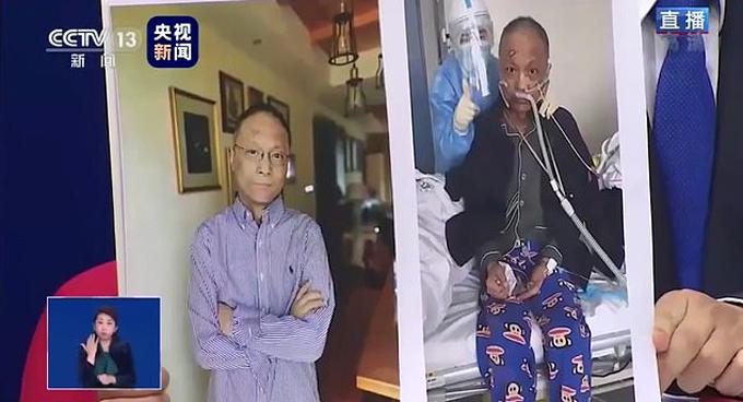 Bác sĩ Yi Fan sau khi hồi phục (trái) và khi điều trị ở bệnh viện (phải). Ảnh: Beijing TV Station.