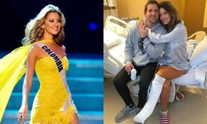 Hoa hậu Colombia phải cưa chân