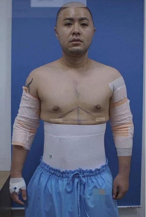 Sau ca phẫu thuật dây chằng Akira Phan từng mất kiểm soát cân nặng.