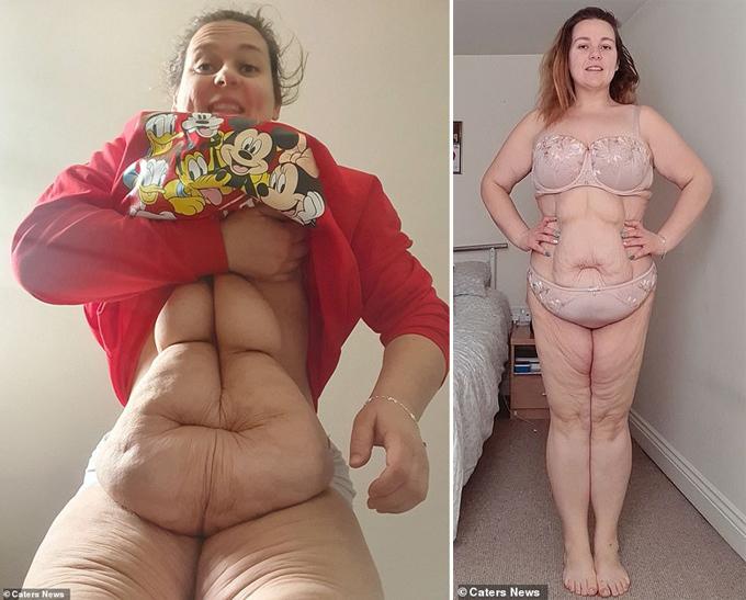 Hannah đang kêu gọi ủng hộ để sớm có đủ số tiền làm phẫu thuật loại bỏ da thừa.
