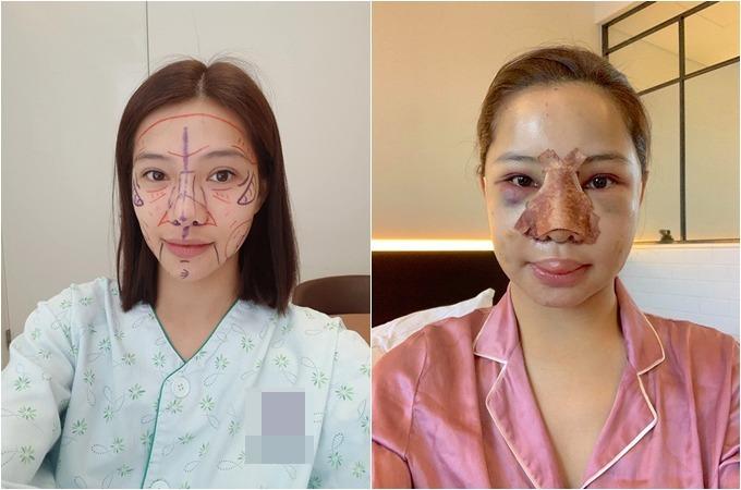 Lưu Đê Ly trùng tu nhan sắc tại một bệnh viện tại Hàn Quốc.