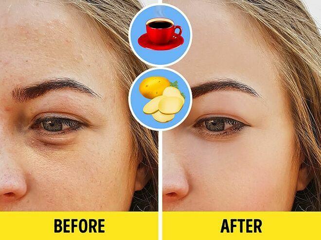 Khoai tây giúp làm sáng da còn bã cà phê giúp kích thích sản sinh collagen, làm mờ nếp nhăn dưới mắt.