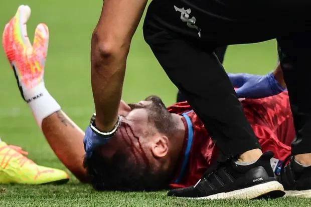 Nhân viên y tế vào sân xem xét vết thương cho David Ospina.