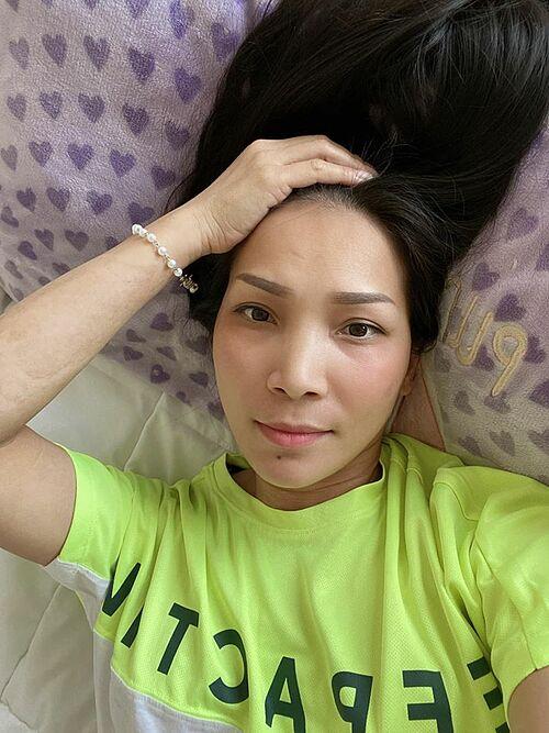 Ca sĩ Hồng Ngọc lộ vết sẹo lớn ở tay sau tai nạn bỏng