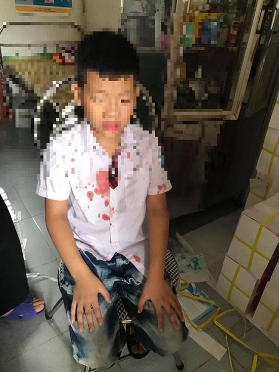 Bé Kiên bị Đức hành hung chảy nhiều máu ở vùng mặt.