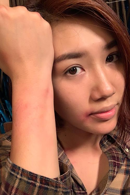 Thuý Ngân quan niệm mỗi vết sẹo trên cơ thể là dấu ấn nhắc nhở cô cần thận trọng hơn khi làm nghề, dấn thân phá vỡ những vùng an toàn để chinh phục mục tiêu nghề nghiệp trong tương lai.
