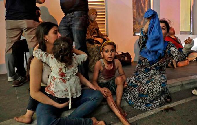 Những người bị thương, trong đó có nhiều trẻ em, ngồi chờ hỗ trợ y tế bên ngoài một bệnh viện ở Beirut. Ảnh: AFP.