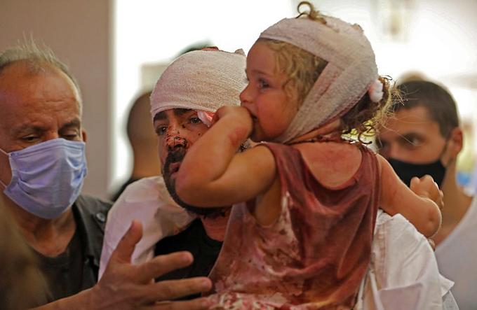 Một em bé được bố bế khi đầu quấn băng, áo dính đầy máu do ảnh hưởng của vụ nổ kho.
