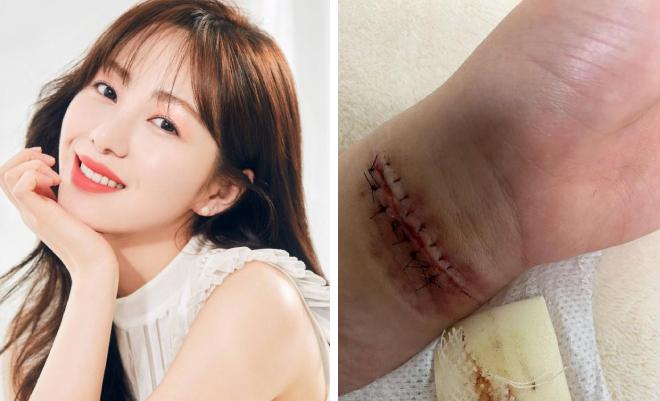Kwon Mina đăng bức ảnh tự làm đau bản thân trên trang cá nhân.