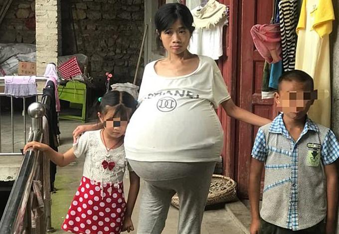 Huang với chiếc bụng to bất thường, chiếm gần nửa trọng lượng cơ thể. Ảnh: Pear Video.