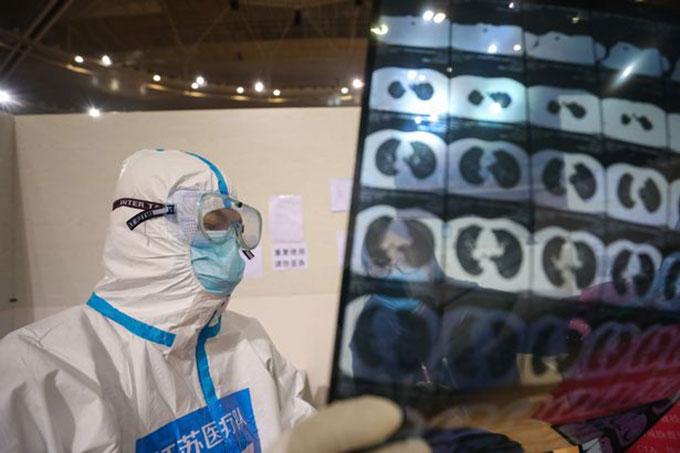 Một bác sĩ Vũ Hán xem kết quả chụp phổi của bệnh nhân Covid-19 hồi tháng 3. Ảnh: AFP.