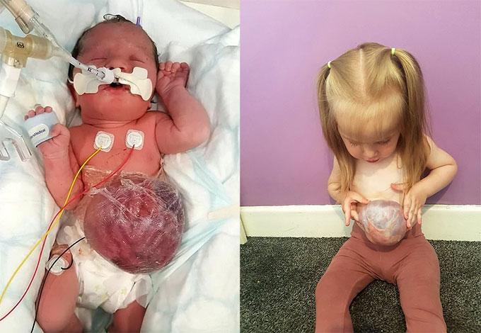 Cô bé Laurel Phizaclea với khối nội tạng lồi ra khỏi cơ thể khi vừa sinh (trái) và khi hai tuổi (phải). Ảnh: SWNS.