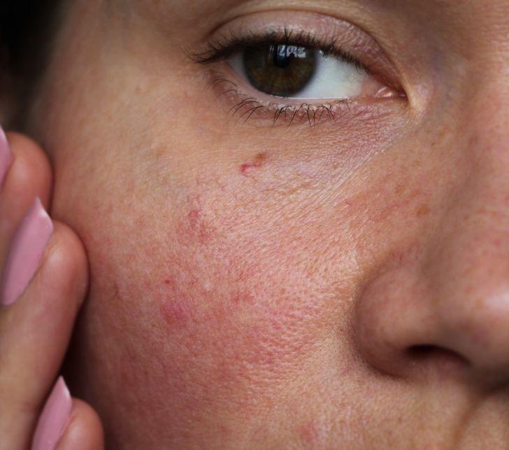 5 lợi ích làn da nhận được khi tắm bằng nước mát - 8