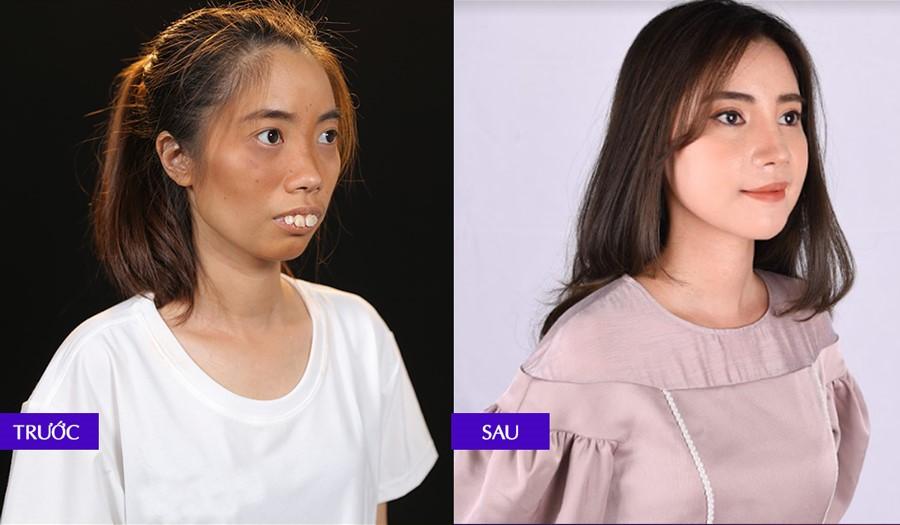 Thí sinh Nguyễn Thị Huệ sau khi lột xác tại chương trình.