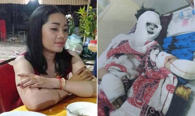 San Chenda trước và sau khi bị Kub Pha tấn công ở xã Kandoeng, huyện Bati, tỉnh Takeo, Campuchia. Ảnh: Viral Press.