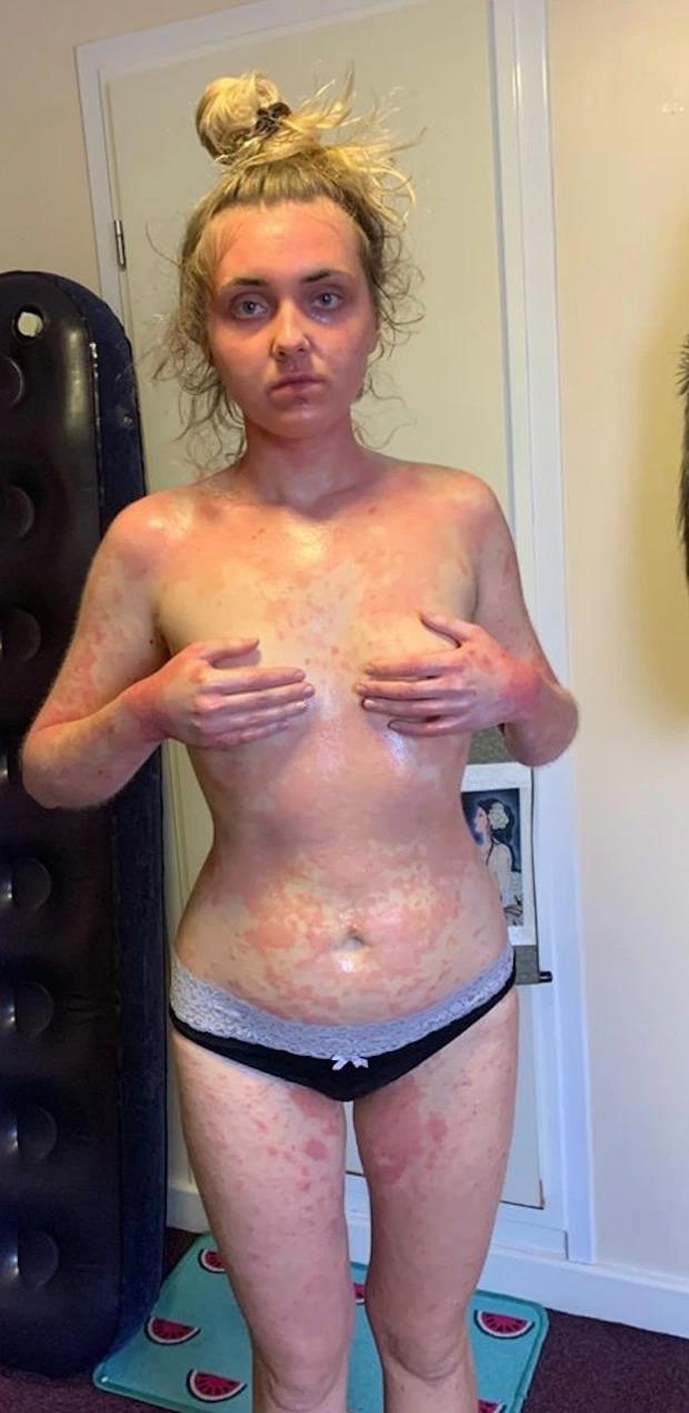 Bệnh chàm eczema không chỉ ảnh hưởng đến ngoại hình mà còn gây đau đớn, tác động tiêu cực đến tâm lý của Paula.