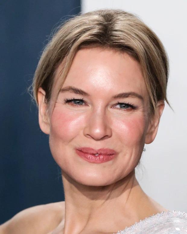 Renée Zellweger hay Cameron Diaz cũng gặp phải chứng bệnh da liễu rosacea.
