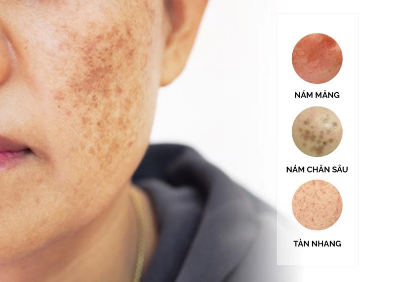 CÁc tình trạng nám da ở phụ nữ.
