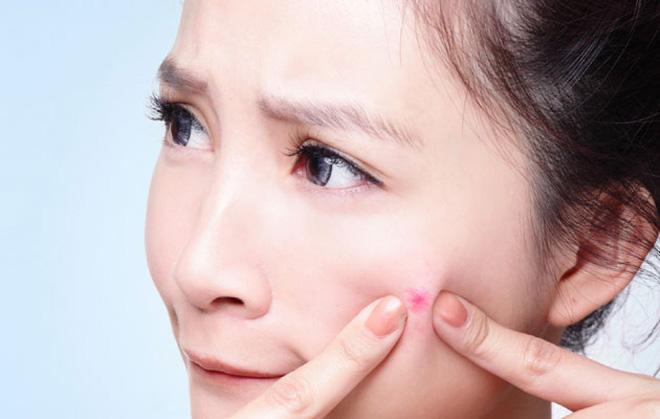 Nặn mụn bằng tay không những khiến lỗ chân lông to ra mà còn dễ gây viêm nhiễm.