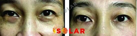 Áp dụng phương pháp điều trị bọng mỡ mắt tại Solar Spa, khách hàng không chỉ được khuyến mại mà còn được cam kết về hiệu quả cao sau lần điều trị đầu tiên.