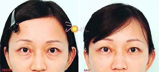 Đôi mắt được trẻ hóa chỉ sau một lần điều trị.