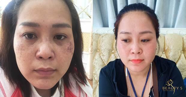 Chị Hương – khách hàng điều trị nám thành công tại Beauty S