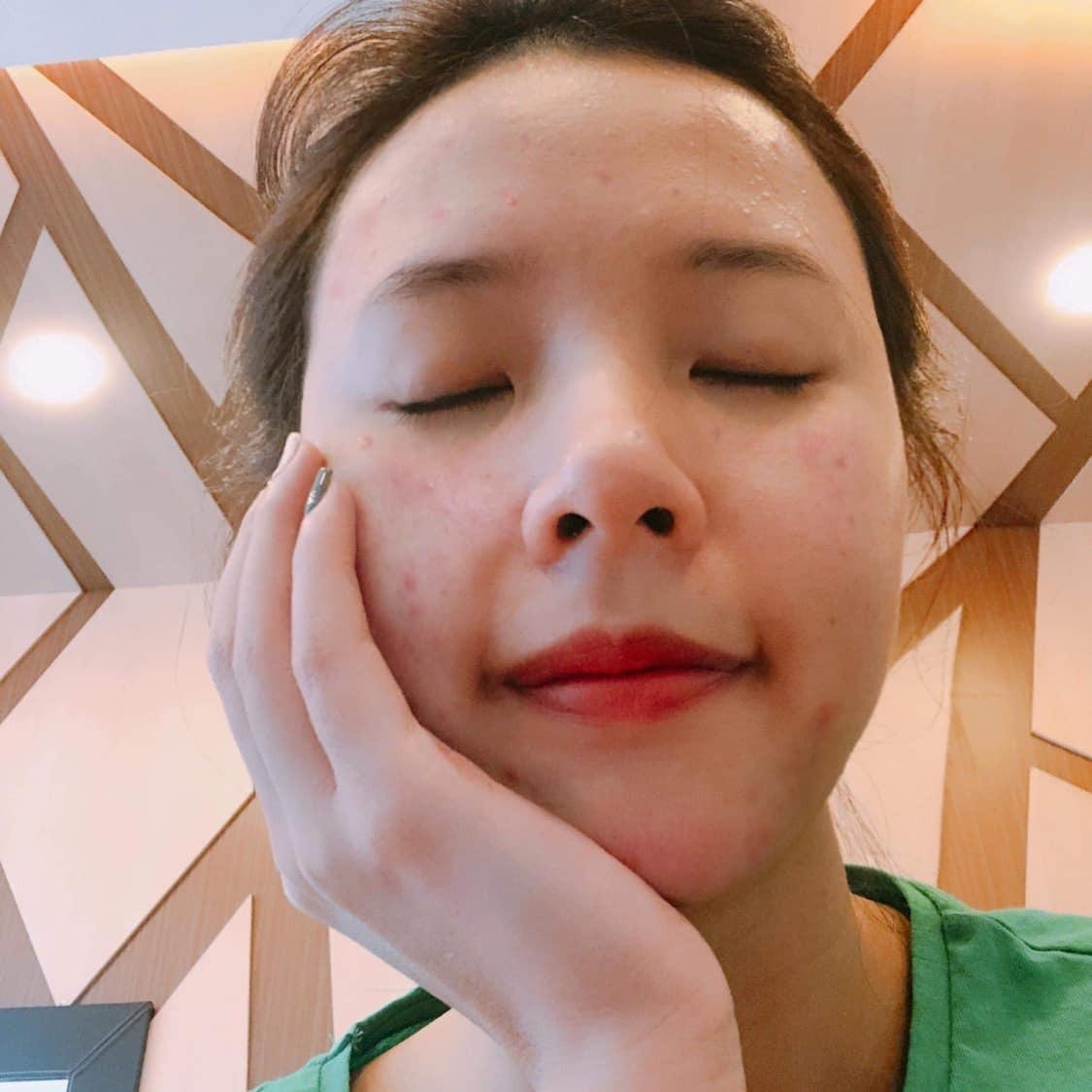 Nữ diễn viên chia sẻ làn da nổi nhiều đốm mụn li ti, đỏ ửng cách đây 4 - 5 năm.