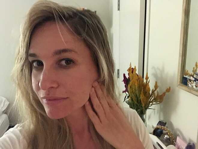 Jen nhận thấy làn da có sự cải thiện đáng kể sau 4 ngày thực hiện liệu pháp đá lạnh.