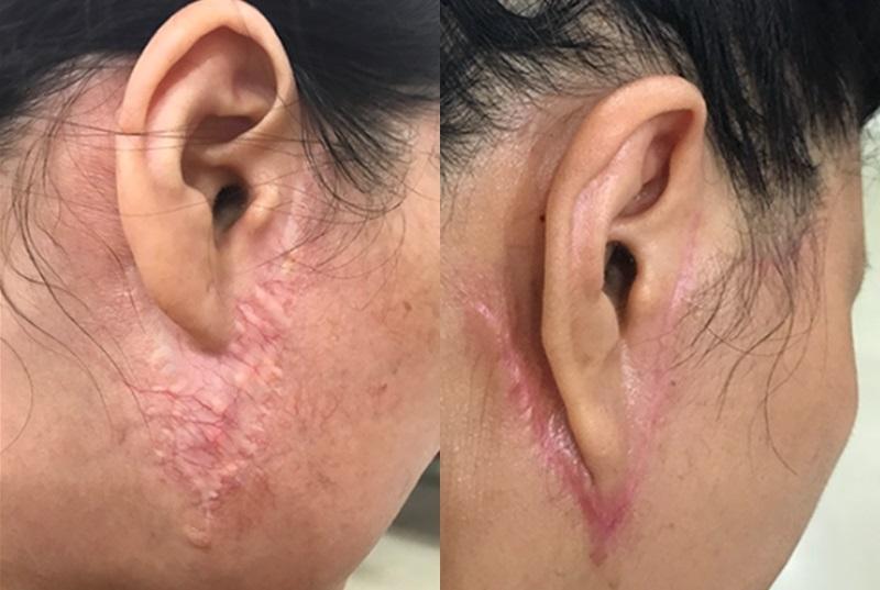 Các biến chứng của việc căng da mặt phẫu thuật sai kỹ thuật.