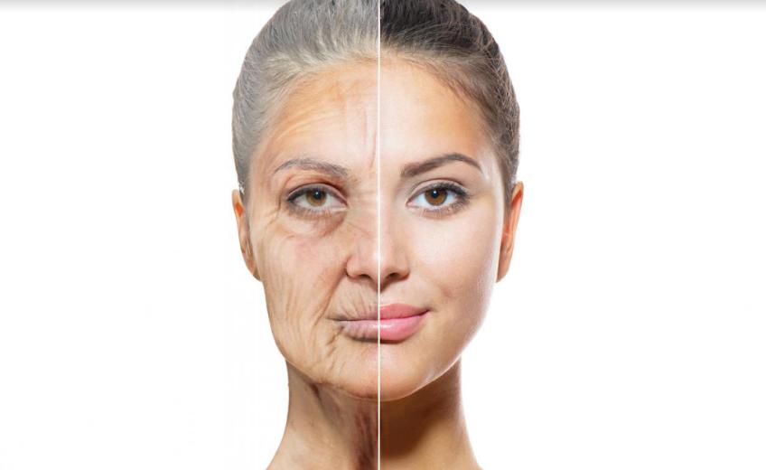 Căng da mặt là kỹ thuật trẻ hóa được nhiều người ưa chuộng.