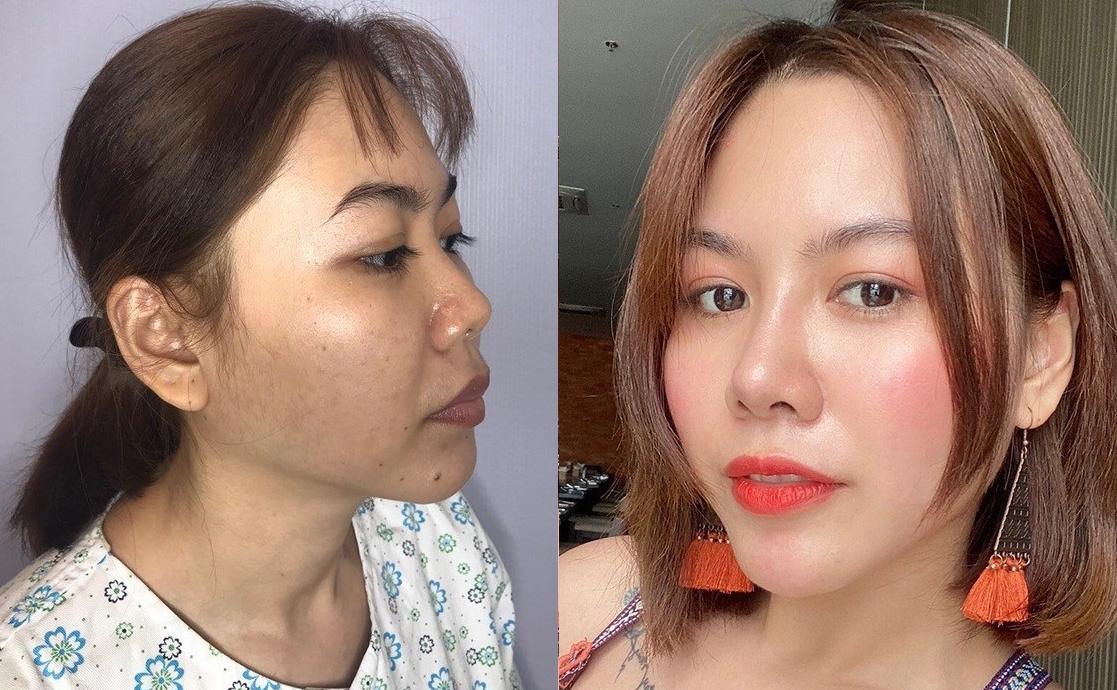 Hình ảnh trước và sau khi tân trang nhan sắc của một khách hàng sau khi sử dụng dịch vụ tại Viện thẩm mỹ Khơ Thị. Ảnh: Khơ Thị.