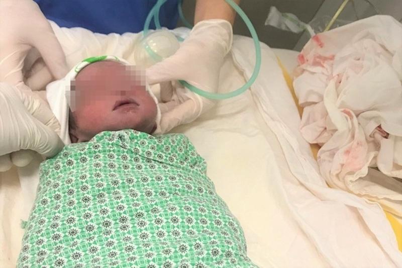 Bé trai ra đời khỏe mạnh sau khi anh song sinh bị sảy ở tuần 24. Ảnh: BVCC