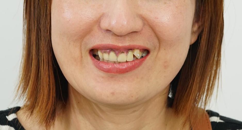 Chị Thu với hàm răng biến chứng khi tìm đến Bệnh viện JW.