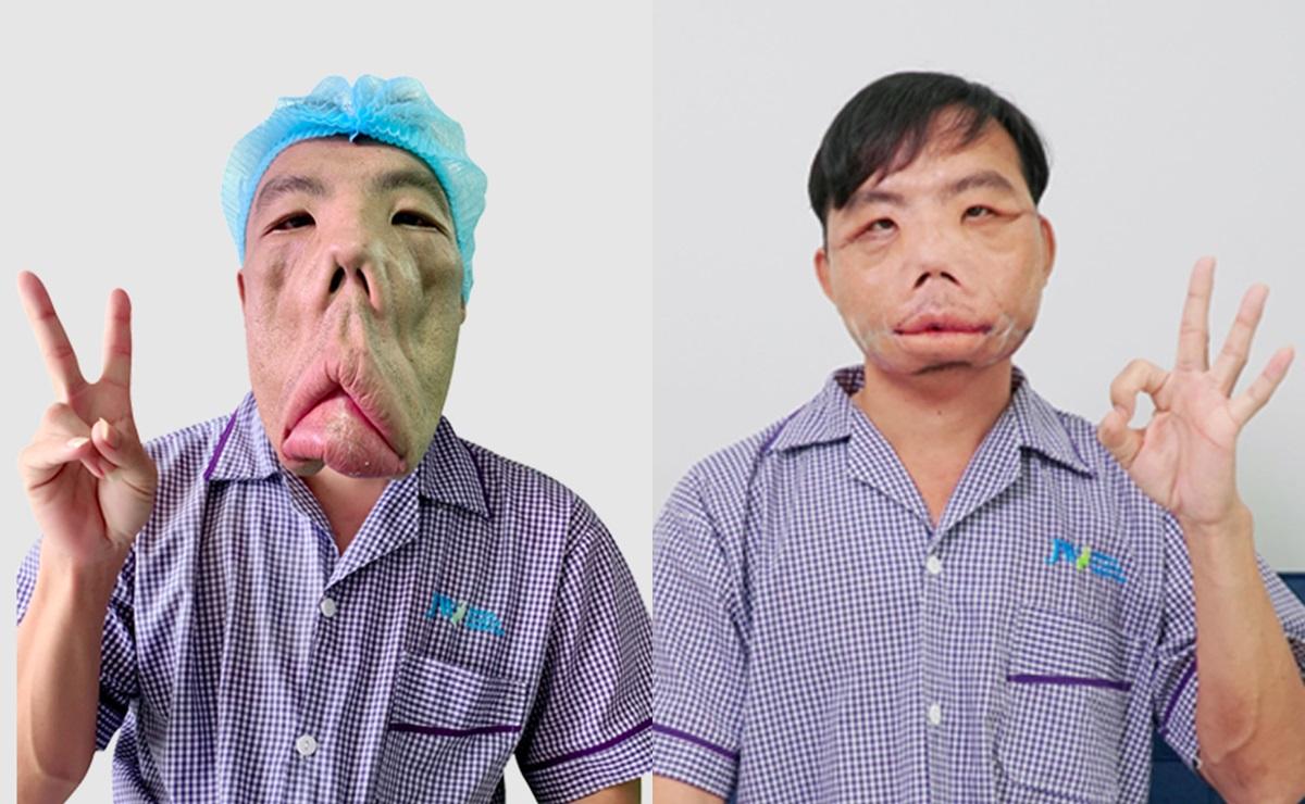 Gương mặt anh Mến được cải thiện sau phẫu thuật lần ba.