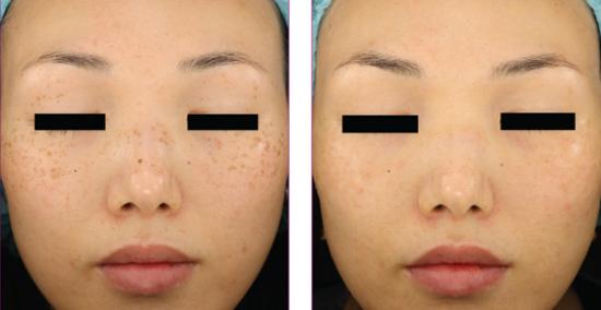 Trị nám da trước và sau khi trị laser.