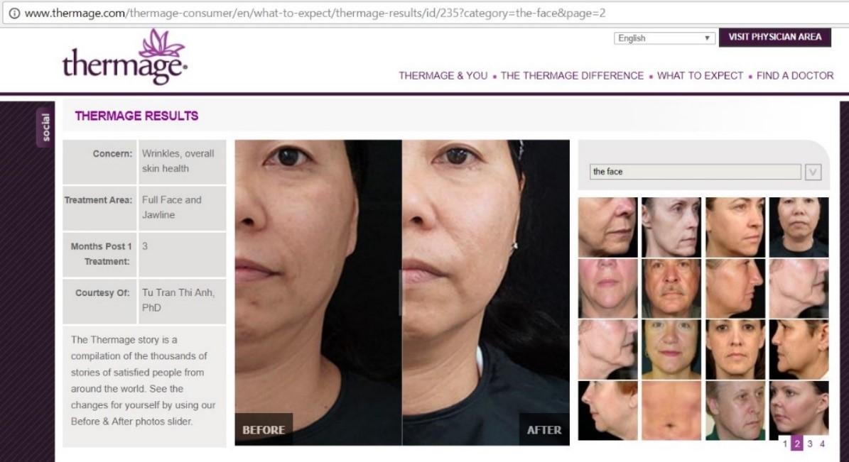 Ảnh điều trị Thermage hiệu quả của TS-BS Trần Thị Anh Tú từng được đăng trên trang web của hãng Thermage.